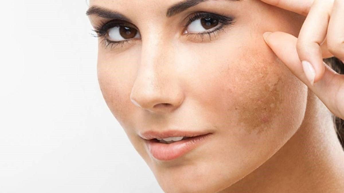 منها خل التفاح.. طرق طبيعية لعلاج تصبغات الجلد العميقة